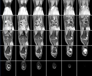koleno rentgen